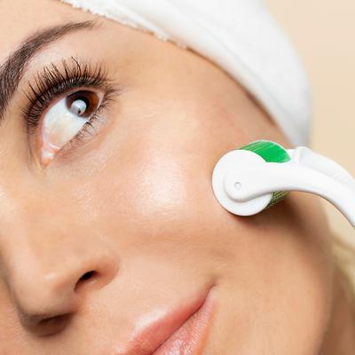 sdaraskin - Microneedling Under Eyes   Microneedle Roller 2.0 - Sdara Skincare