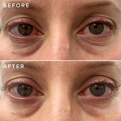 Farmacy - Cheer Up Eye Cream